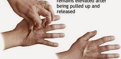 Kapni me majat e gishtave lekuren e duareve dhe leshojeni
