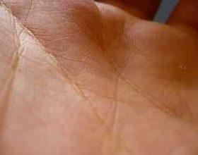 Kurani dhe karakteristikat ndijimore e lekurës