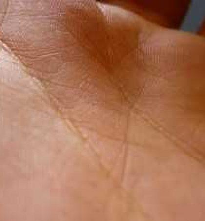 Acarimi i lëkurës dhe fërkimi ndërmjet kofshëve