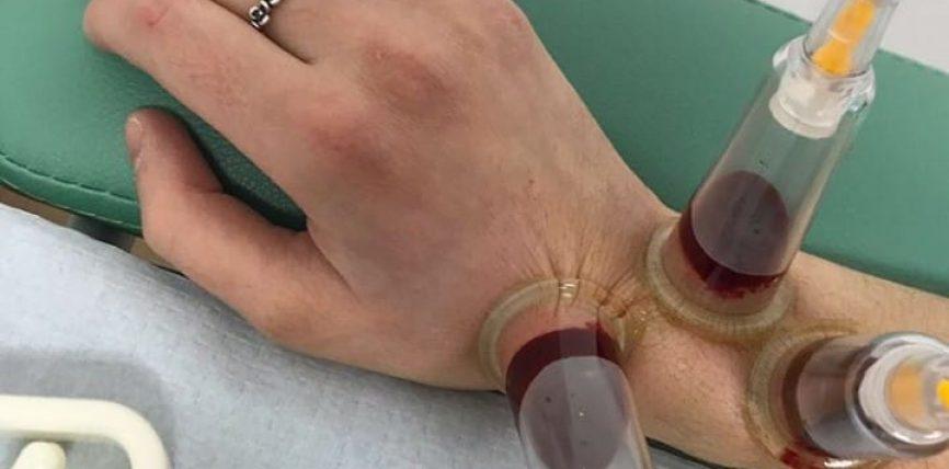 Inflamacionet (pezmatimet) e ndryshme në lëkurë dhe ndikimi Hixhames!
