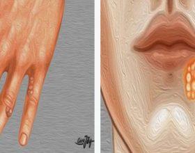 Llojet e infeksioneve të lëkurës dhe shkaku i tyre