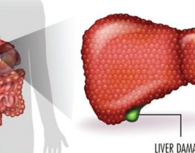 9 Këshilla mjekësore për të shëruar mëlçinë e dëmtuar