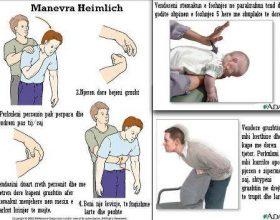 Manevra Heimlich- manipulimi gjat ngulfatjes me ushqim ose trupa te huaj!