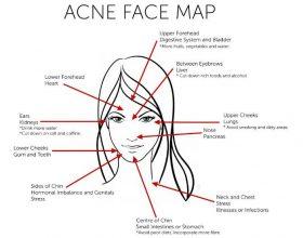 Cfare thone aknet ne fytyren tuaj? Ja nje harte orientuese per aknet qe mund te keni ne fytyre. Merrni nje pasqyre dhe shikoni problemin tuaj: