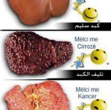 Inflamacioni viral i melcise hepatitet!