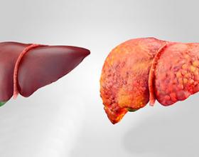 Pastrimi i mëlçisë dhe parandalimin e sëmundjeve të saj