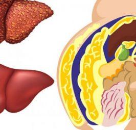 6 ushqimet që çhelmojnë mëlçinë dhe përmirësojnë funksionin e saj tretës