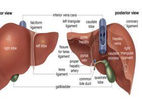 Mëlçia e dhjamosur, Shkaqet, Simptomat dhe Trajtimi