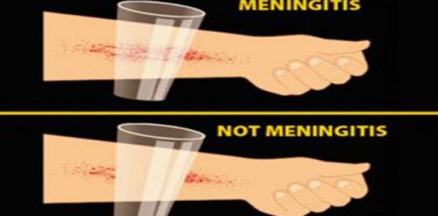 Simptomat e meningitit që çdo prind duhet të dijë si t`i dallojë
