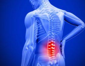 5 kurat natyrale për dhimbjen e mesit
