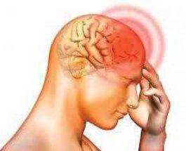 Shkaktari i migrenes