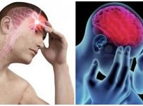 3 format e migrenës