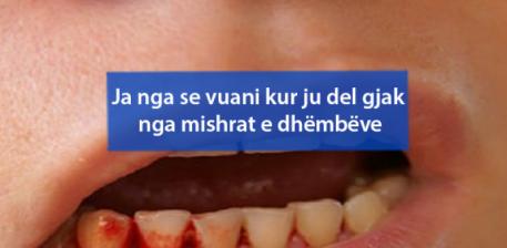 Ja nga se vuani kur ju del gjak nga mishrat e dhëmbëve