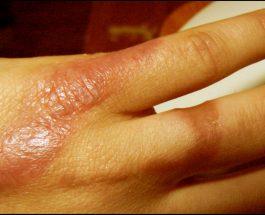 Mjekimi i djegieve me mjaltë