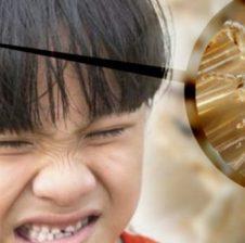  Si te largoni morrat nga koka e femijeve tuaj ne menyre natyrale