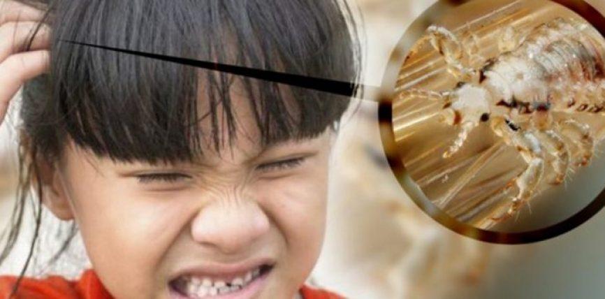 4 këshilla të shpejta dhe efektive për të hequr qafe morrat e kokës dhe për të shmangur vizitën tek mjeku!