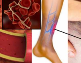 4 shenjat që paralajmërojnë për mpiksje të gjakut – faktorët e riskut