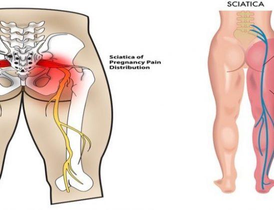 Ilaç për kurimin e nervit shiatik dhe sëmundje reumatike
