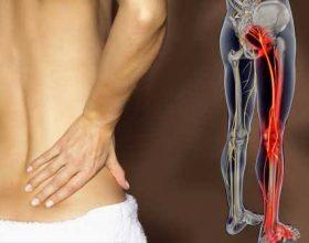 Si e dini qe vuani nga nervi ishiatik?