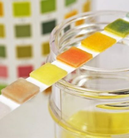 Ngjyra e urinës do t'ju tregojë sëmundjen tuaj