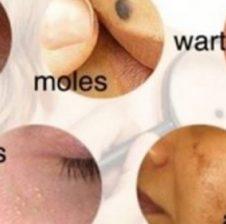 Si të trajtoni lëkurën e thatë, puçrrat, nishanet, pikat e zeza, aknet dhe njollat duke përdorur mjekimet popullore
