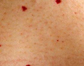 A duhet të shqetësoheni nëse i keni këto njolla të kuqe në trup?