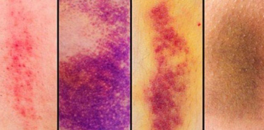 Çfarë tregojnë këto shenja të nxira që keni në trup