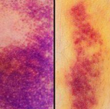Cfarë tregojnë këto shenja të nxira që keni në trup ?