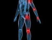 Dhimbje në kocka, nyje e kyçe