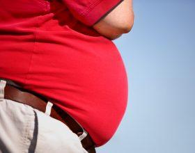 Obesiteti, sëmundje e shekullit 21