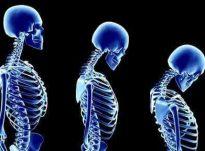 Osteoporoza, sëmundja e kockave që prek gratë