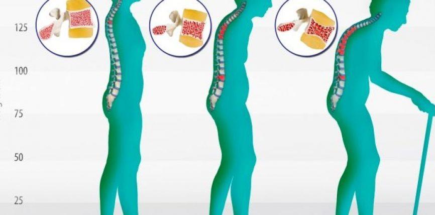 Shenjat dha shkaktarët e osteoporozes, si ta parandalojmë që në moshë të re