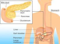 Kanceri pankreatik