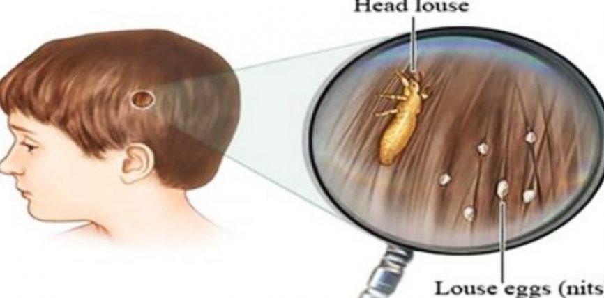 Të gjithë prindërit duhet ta dinë: Largoni parazitët e kokës pothuajse menjëherë me këtë mënyrë që doktorët nuk jua tregojnë kurrë!