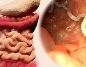 10 Shenjat që keni Parazitë në Trupin tuaj (dhe si t'i largoni ato)