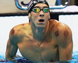 Michael Phelps,Hixhame apo cupping therapy