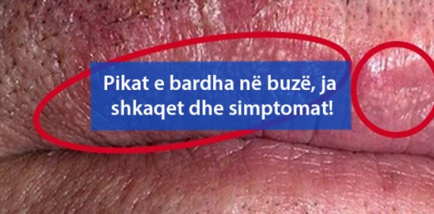 Pikat e bardha në buzë, ja shkaqet dhe simptomat!