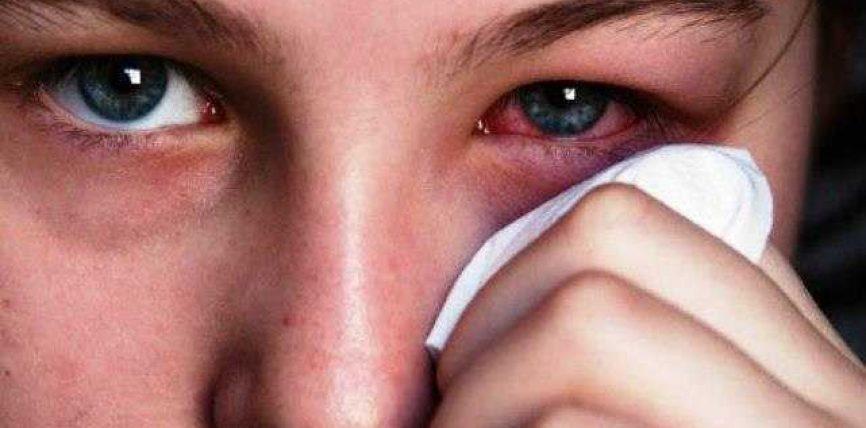 Pika caji për infektim të syve !!