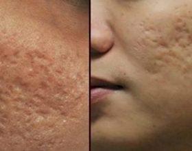 Si të zhdukni shenjat e akneve dhe poret e zgjeruar