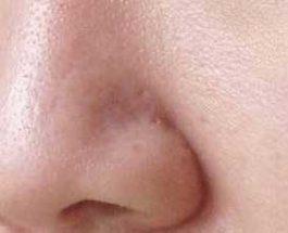 Maskë për mbylljen e poreve të mëdha