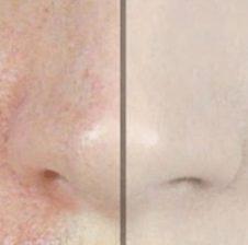 Si ti zhdukim poret e lëkurës dhe të kemi një fytyrë të pastër vetëm me një përbërës
