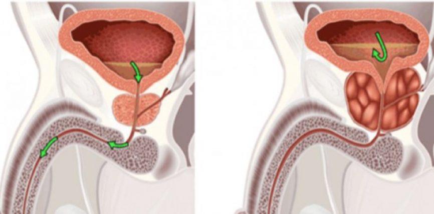 Nëse keni probleme me prostatën, këto 5 receta do ju ndihmojnë ta trajtoni atë në mënyrë natyrale!
