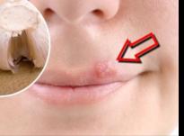 Puçrra (acne)