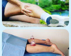 Trajtimi i Dhimbjeve të kofshes apo pulpes sê këmbës me terapin e Hixhames – Terapia më e përsosur për probleme të tilla shëndetësore!