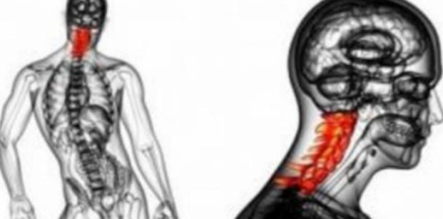 Ja cfarë duhet të bëni për të hequr dhimbjen e qafës për vetëm një javë pa shkuar tek mjeku!