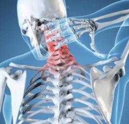 6 mënyra natyrale që të trajtoni dhimbjen e qafës pa përdorur ilaçe të dëmshme