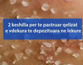 2 keshilla per te pastruar qelizat e vdekura te depozituara ne lekure