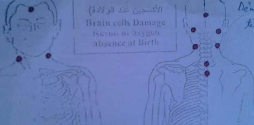 Per permisimin e qelizave  trurit!