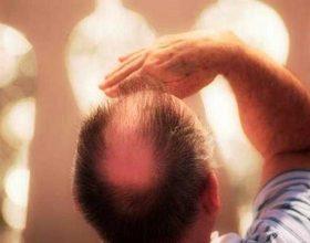 Cilat janë shkaqet që shkaktojnë rënien e flokut ?