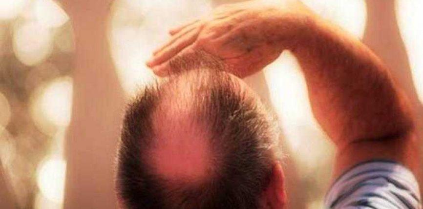 A mund të shmanget rënia e flokëve?